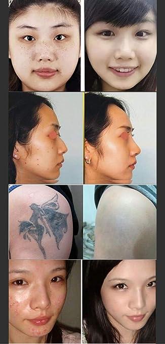 Láser Picosegundo Pluma Pecas Tatuaje Eliminación Mole Oscuro Spot ...