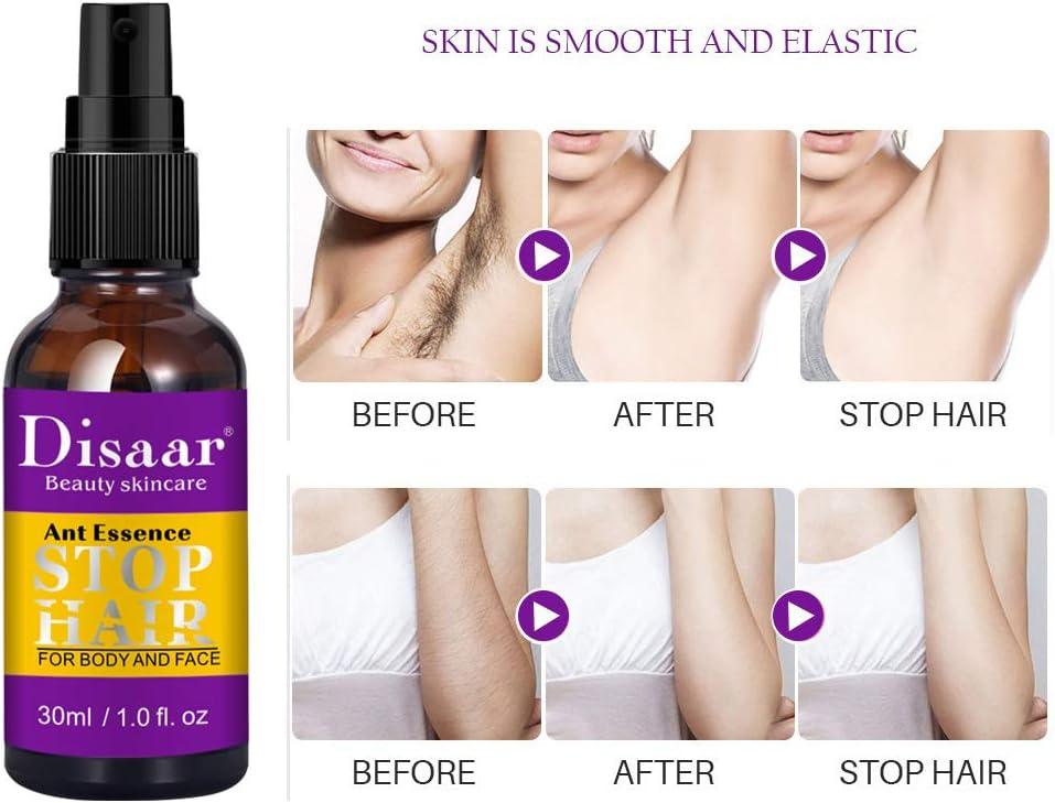 KiMiLIKE La eliminación indolora Hair Spray 30ml Detener el Crecimiento de Pelo en Spray piernas depilación indolora Body Spray Inhibidor de Pelo Hombres Mujeres