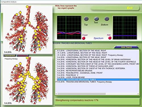 Health Check Computer Aided Bioresonance Medicomat-36 7D-NLS Health Analyzer Therapy System Non-linear System (NLS) Hi-Tech Computer Diagnostic Health Testing by Medicomat (Image #6)