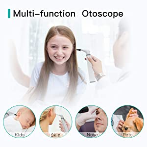 Wireless Otoscope Ear Camera with Dual View, 3.9mm HD WiFi Ear Endoscope with 6 LED Lights for Kids and Adults, Ear Wax Removal Endoscope, Compatible with Android and iPhone