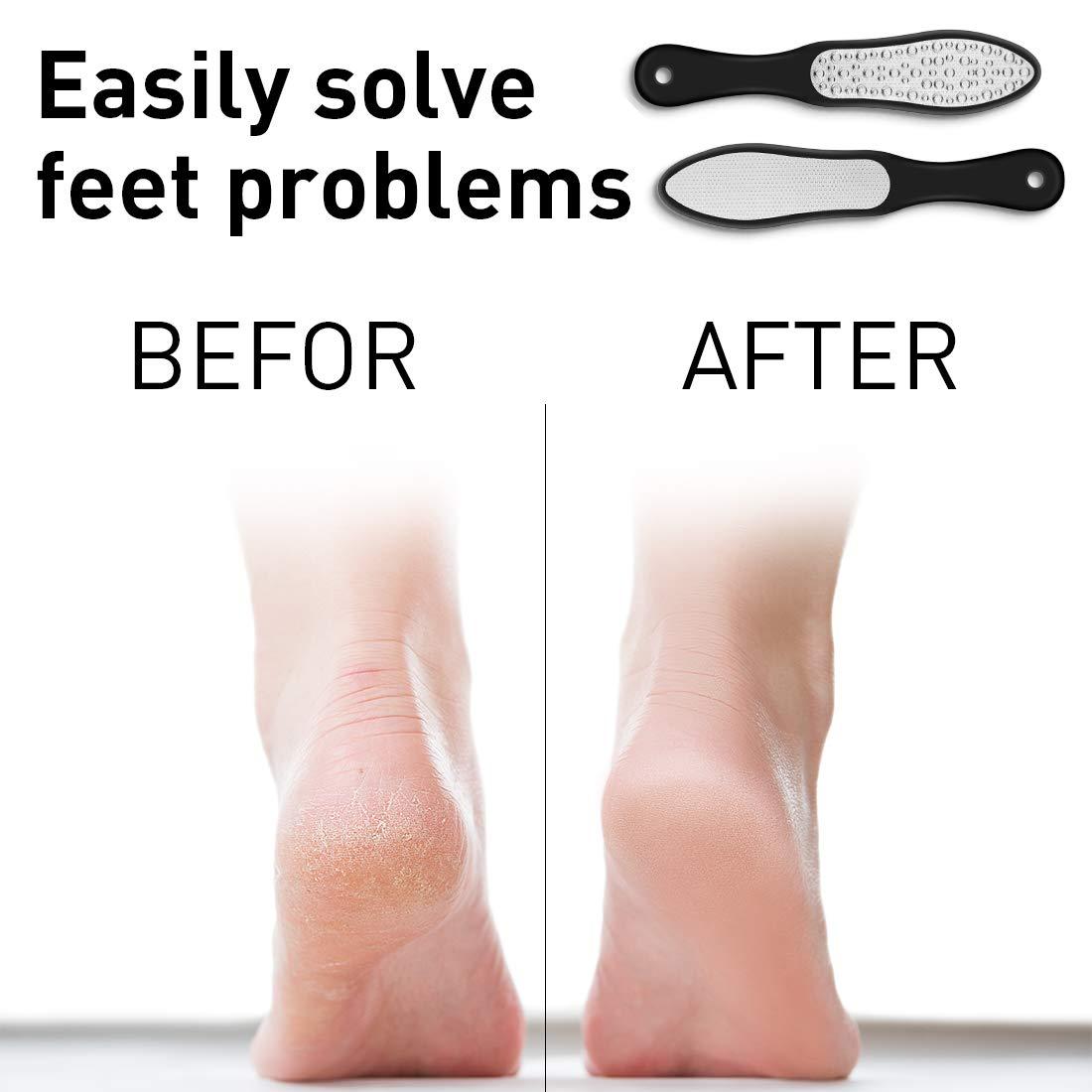 Laser Hornhautfeile - Hornhautentferner für die Entfernung von Hornhaut & Hühneraugen aus rostfreiem Edelstahl - Fußpflege für seidig weiche Füße in Podologie Qualität