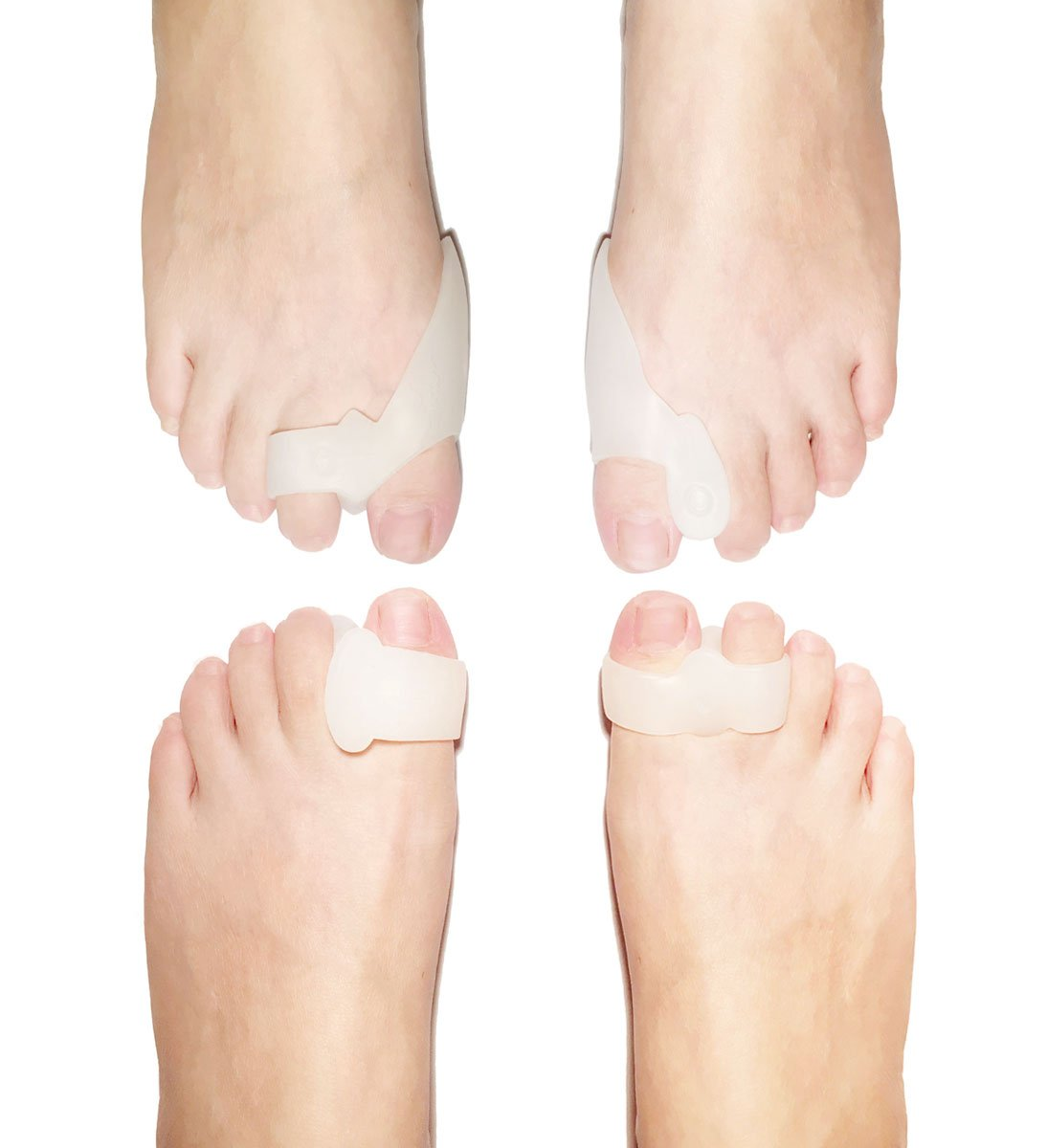 Takit 8 Piece Bunion Pad & Spacer Kit - 4 Pairs Of Soft Gel Toe Separators & Bunion Cushions - One Size Fits All Bunions Treatment - Fast Bunion Relief - Wear With Shoes - For Men & Wome