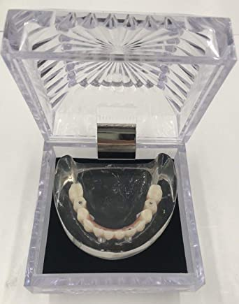 Amazon com: Kilgore Dental Over Denture Lower Mandible Model