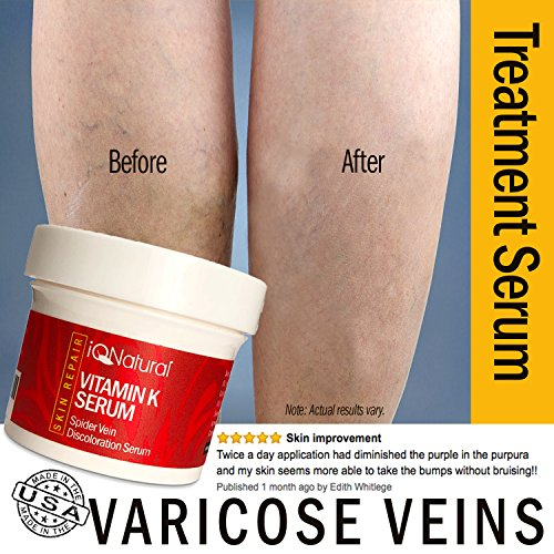 vitamin c for varicose veins