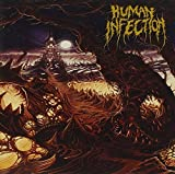 Curvatures In Time by Human Infection (2014-05-04)