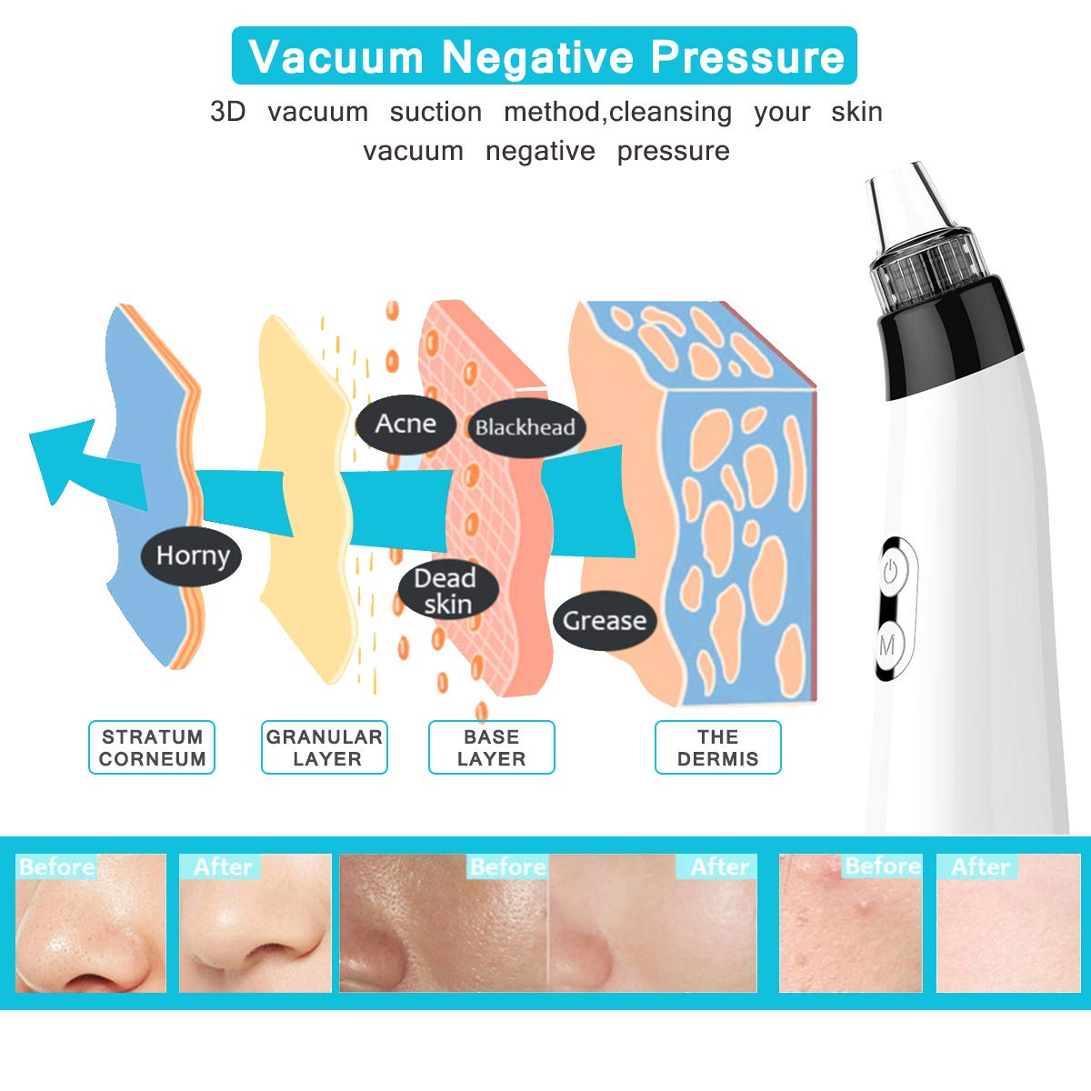 Blackhead Remover Pore Vacuum, Rechargeable Electric Facial Acne Cleaner Tool & 5 Probes Microcrystalline & Facial Massage Rolling Head for Eye Nose Face Skin Acne Comedone Extractor