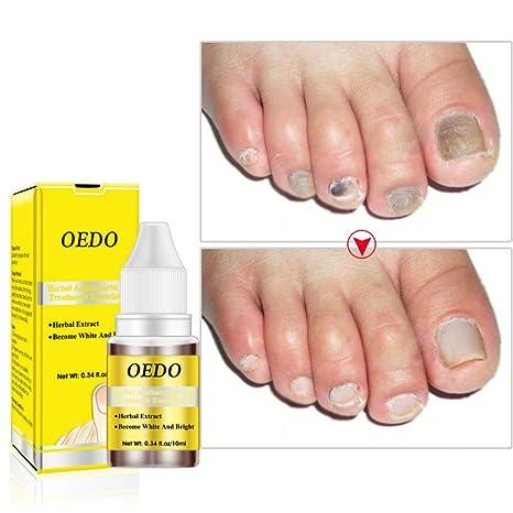 Huile essentielle de soin des ongles Antibactérien à base de plantes  Prévenir la mycose des ongles