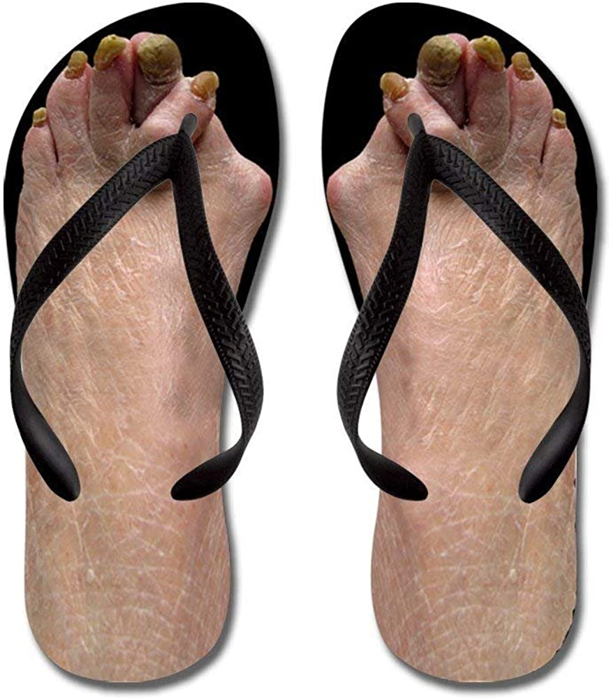 in pictures sandals feet Ugly
