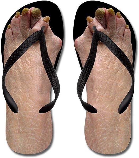 bb1f12b0f Liuzhis Ugly Feet - Flip Flops
