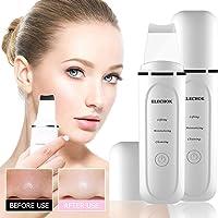 Ultraschall Peeling Gesicht Porenreiniger,Elechok Skin Scrubber Ultraschallpeelinggerät Mitesser Entferner Haut Scrubber Akne Entferner Hautreiniger Gesichtsreiniger für Gesichtsreinigung (Weiß)