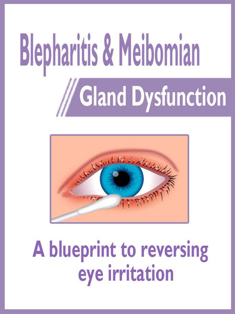 Blepharitis And Meibomian Gland Dysfunction  A Blueprint To Reversing Eye Irritation  English Edition