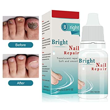 Amazon.com : Toenail Fungus Treatment, Nail Repair Treatment, Fungal ...
