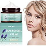 Scar Cream,Scar Removal,Scar Treatment,Scar Removal Cream,Scar Remover Repair Fade Cream for Face Body Surgical Scars Burns Old Scars