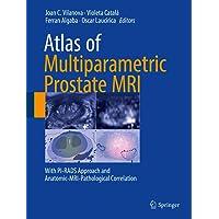 Atlas of Multiparametric Prostate MRI: With PI-RADS Approach and Anatomic-MRI-Pathological...
