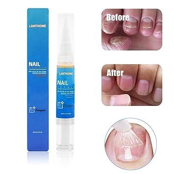 Tratamiento de hongos anti hongos, Tratamiento de hongos anti hongos, Tratamiento de uñas anti hongos líquido para el cuidado de las uñas adecuado ...