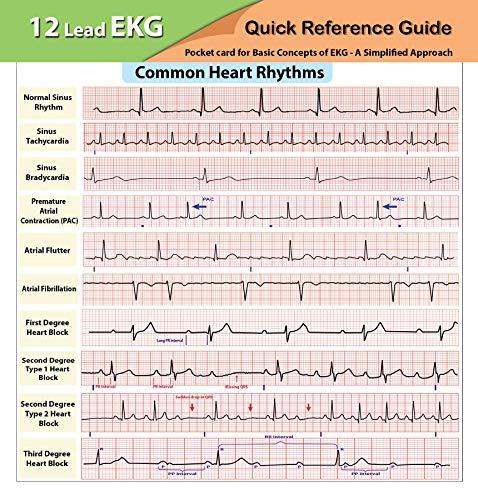 EKG Pocket Card Cards – January 1, 2016