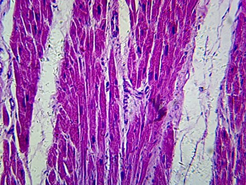 Myocardial Infarct Section   Microscope Slide