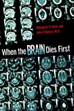 When the Brain Dies First, Margaret O. Hyde and John F. Setaro, 0531115437