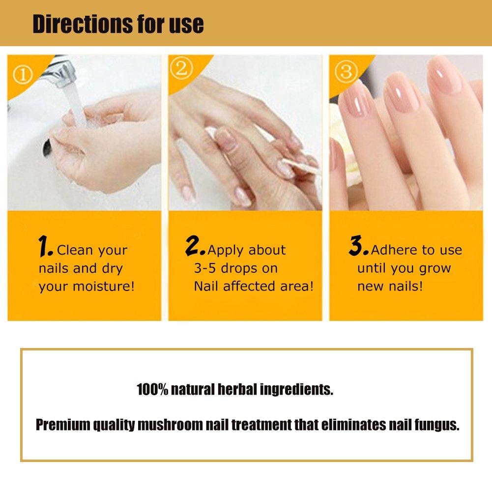 Nail Fungus Oil Nail Care,Nail Fungus Treatments,Fungus Stop,Nail Care Treatment of Anti-Fungal Solution,Effective against nail fungus 30ml by Cherioll (Image #5)