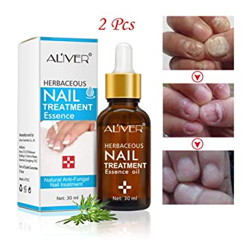Amazon.com : Liquid Nail Fungal Treatment, Iuhan Fungal Nail Repair Liquid Treatment Pen Onychomycosis Paronychia Anti Fungal Nail Infection (2Pacs) : ...