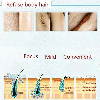 0.5 mm Set dermaroller cara 540 aleación de titanio Micro Needle Roller para Cicatrices de cara y cuerpo, de dilatación de arrugas, acné, celulitis, ...