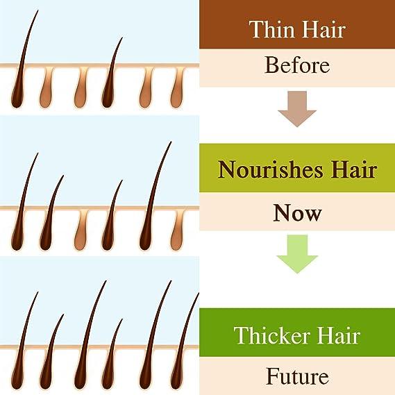 Skymore Fast Hair Growth Serum, Esencia de Crecimiento Rápido del Cabello, Serum de Crecimiento del Cabello, Tratamiento del Cabello para Evitar la Caída ...