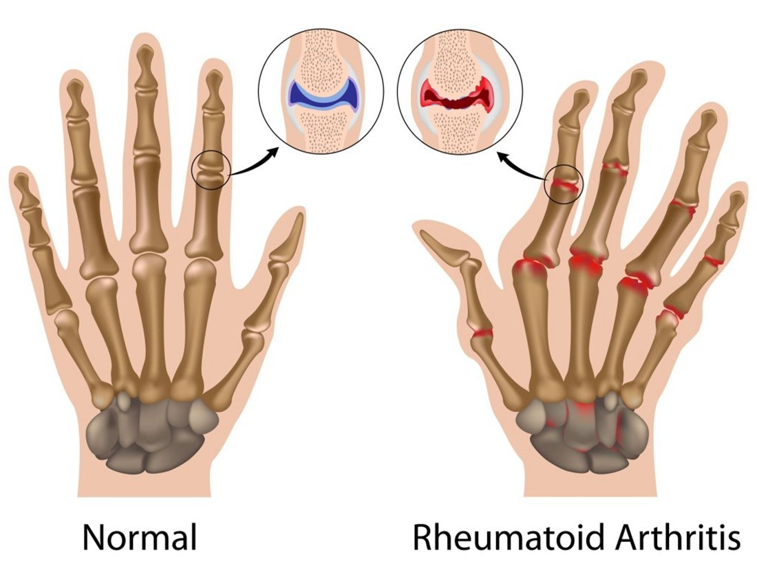 Medex Lab Inc Orthopedic Arthritis Compression Gloves All Day Relief (5 Beige)