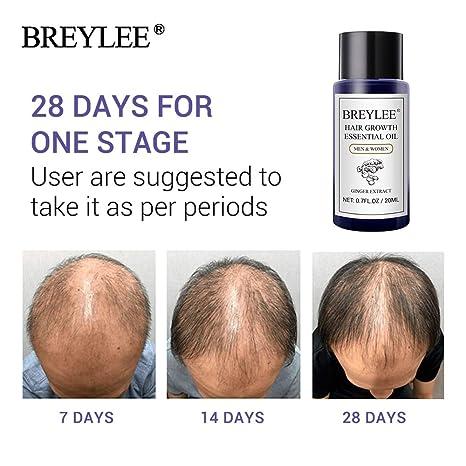 Amazon com: 1 piece BREYLEE Hair Growth Essential Oil 20ml