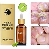 Hongo Uñas Tratamiento,Nails Fórmula Anti Hongos para Uñas,Uñas de los pies y