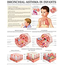 Bronchial asthma in infants e-chart: Quick reference guide