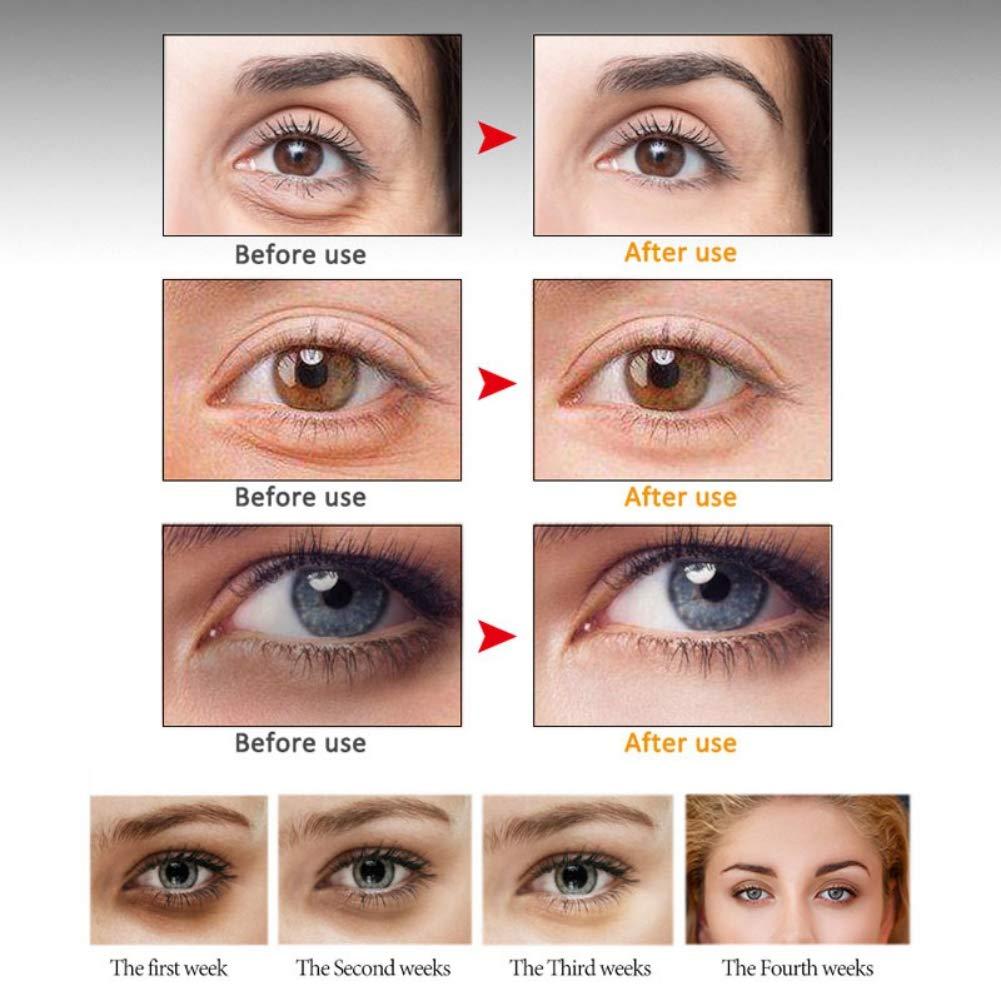 Amazon.com: Active Anti arrugas Reparación Ojo Esencia ...