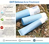 Clearogen Hormonal Acne Solution Natural Anti-DHT