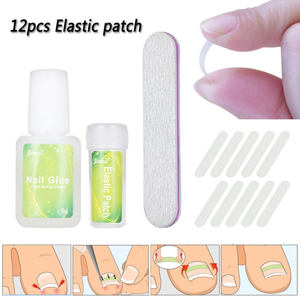 ZHUOTOP Ingrown Toenail Correction Tool Set 12pcs Nail File Elastic Patch Straightening Clip Nail Glue Toe Nail Care Pedicure Tool #02
