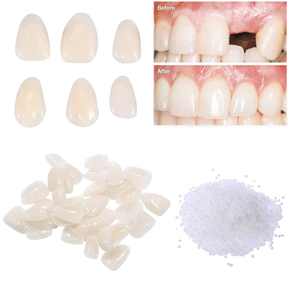 Temporary Tooth Repair Kit-Teeth Veneers for Fix the Missing Tooth Teaching,Thermal Fitting Beads for Filling the Broken Tooth and Teeth Gap, Resin Fake Teeth Crown : Beauty