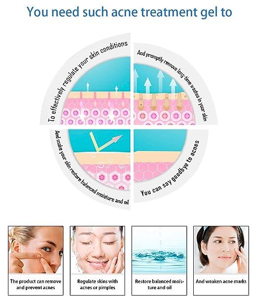 amazon com: acne removal pimple cream, acne treatment anti acne spot cream  skin repair face cream - best anti acne cream for acne scar and spot  removal:
