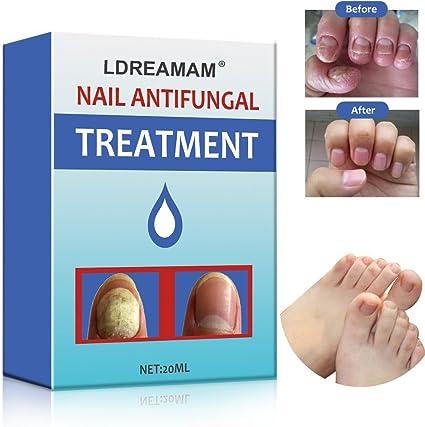 terapia micosi unghie piedi