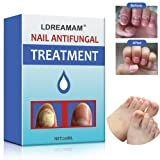 Nail Antifungal Treatment,Anti-Fungal Solution,Toenail Fungus Treatment,Antifungal Nail Gel,Antifungal Fungus Killer finger and Feet Nail Treatment Restore Nails to Their Natural State