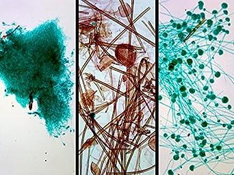 Molds, Aspergillus, Penicillium and Rhizopus - Microscope