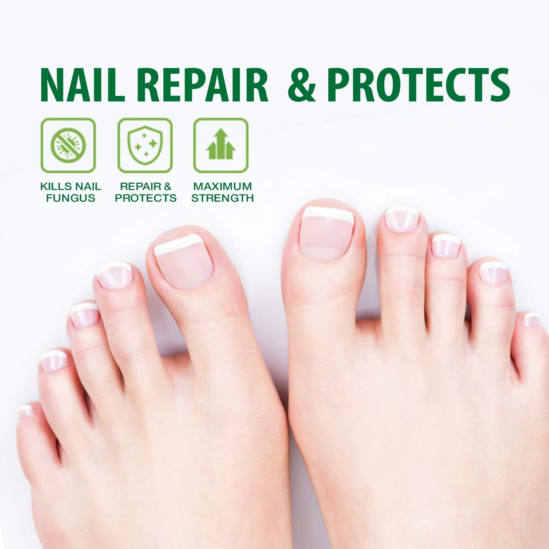Amazon.com : VieBeauti Nail Repair Pen, Nail Fungus Treatment ...