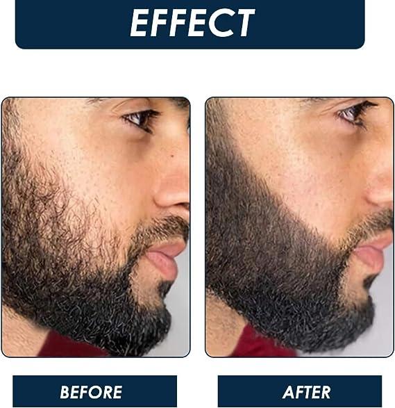Derma Roller, Beard Roller, Microneedling Roller, Rodillo de microagujas de aleación de titanio de 0,5 mm para el crecimiento de la barba y el ...
