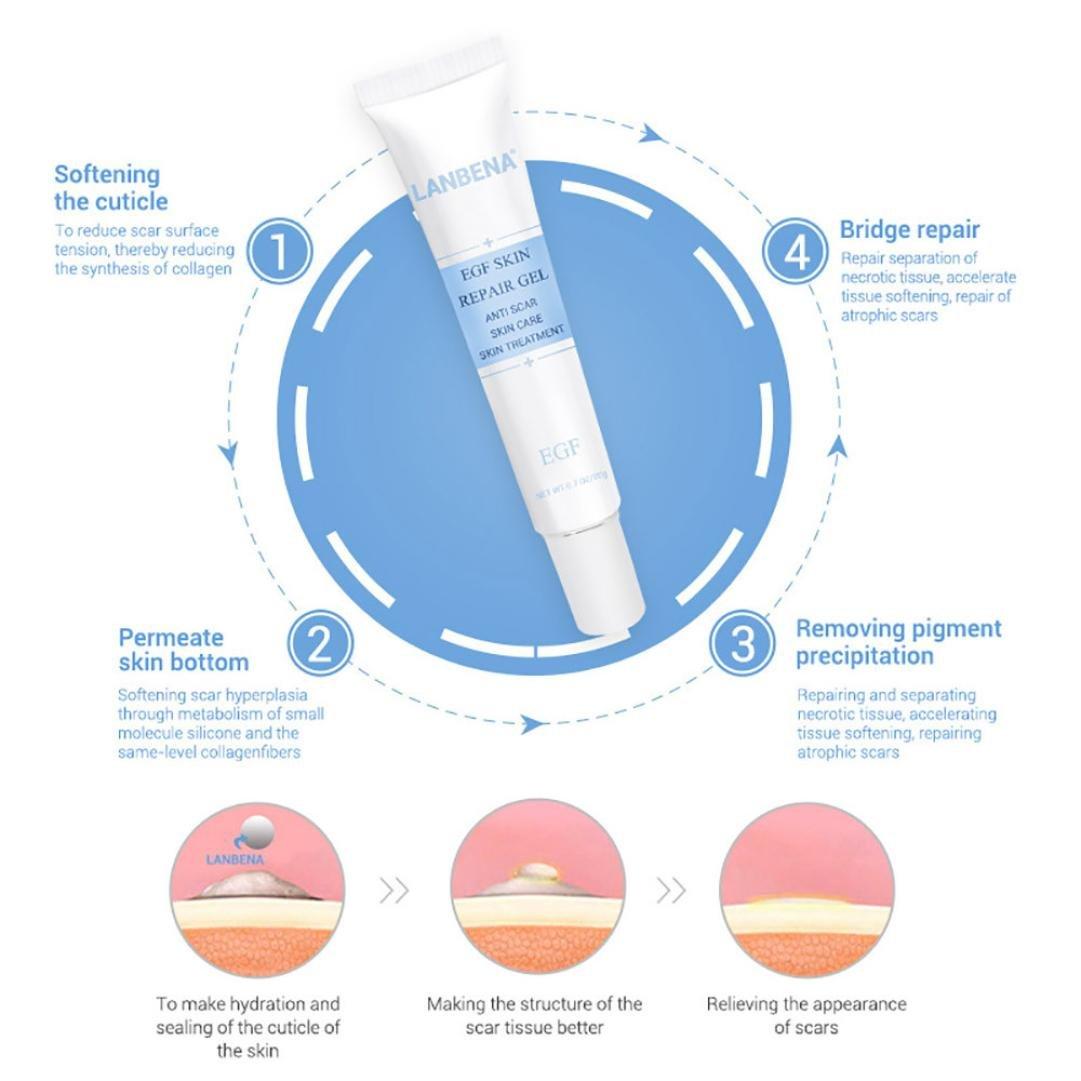 Removing Scar Ointment - Fheaven Acne Scar Removal Cream Skin Repair Face Cream Acne Spot Treatment 30ml by Fheaven (Image #3)