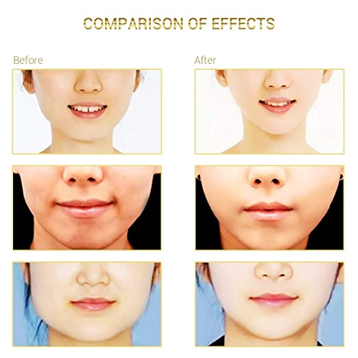 Surenhap 5Pcs Face V-Line Chin Arriba Lift Mask Anti-Age Adelgazante ...