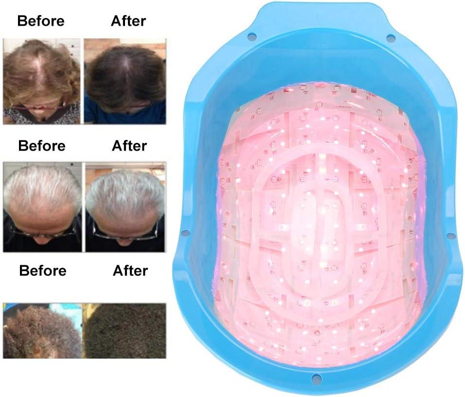 Laser Terapia pelo Crecimiento Casco dispositivo, Laser Tratamiento Anti Fomentar caída del cabello pelo Crecimiento Laser Cap Massager para hombres y mujeres, Laser pelo Terapia para pelo de volumen
