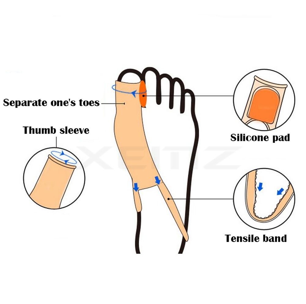Bunion Corrector, Toe Hallux Valgus Orthodontic Seperators, Tailors Bunion Relief System Socks Sleeves, Foot Toe Protector Divider Straightener Ball of Foot Cushions, for Big Hammer Toe, (1)