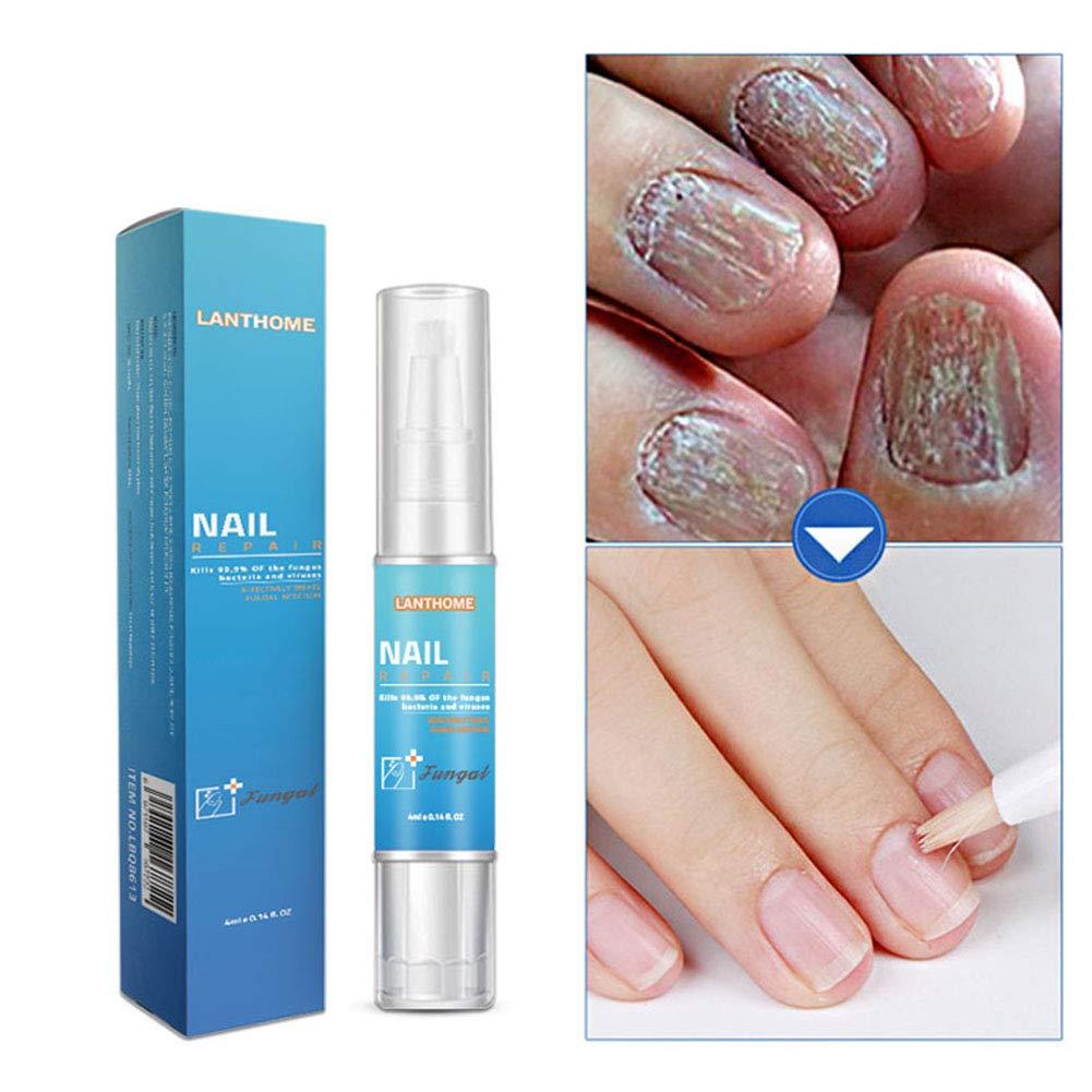 Amazon.com : Toenail Fungus Treatment, Cocohot Anti Fungal Nail ...