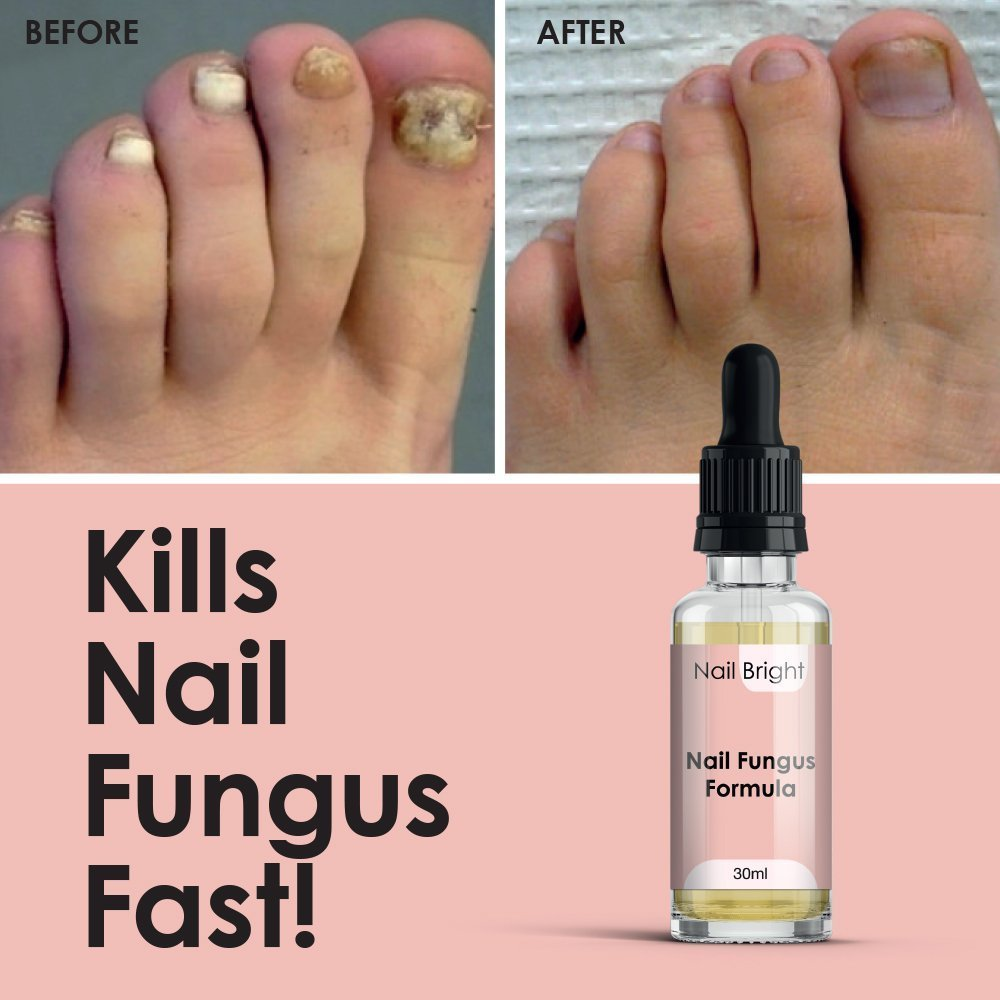 Nail Bright Serum Anti Fungal Treatment Prevents Infection Maximum Strength