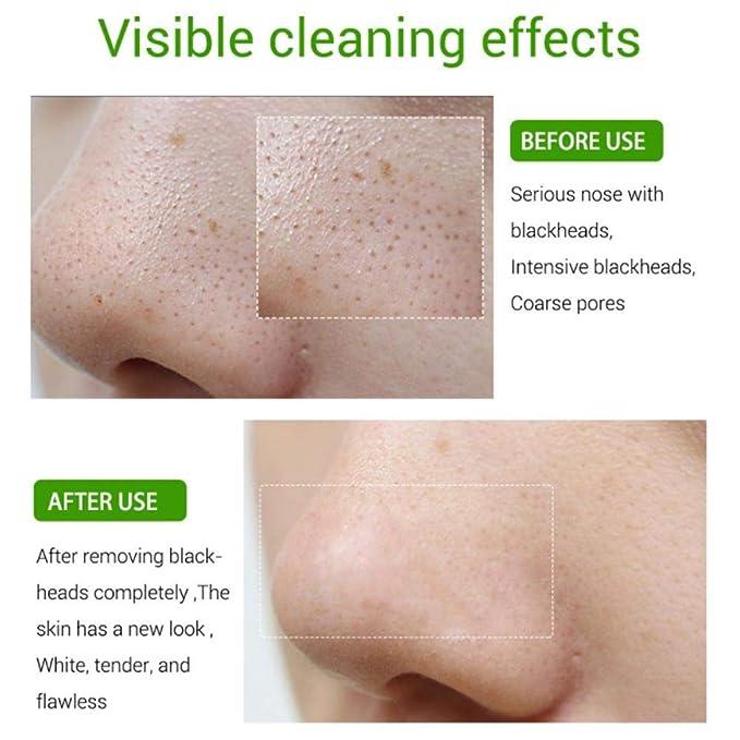 Productos para el cuidado de la piel, blanqueamiento ...