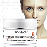 PINPOXE Skin Brightening, Freckle, Dark Spot Corrector Face Treatment Fade Cream, Removes Hyperpigmentation Reduces Melasma, 1, Yellow,Orange