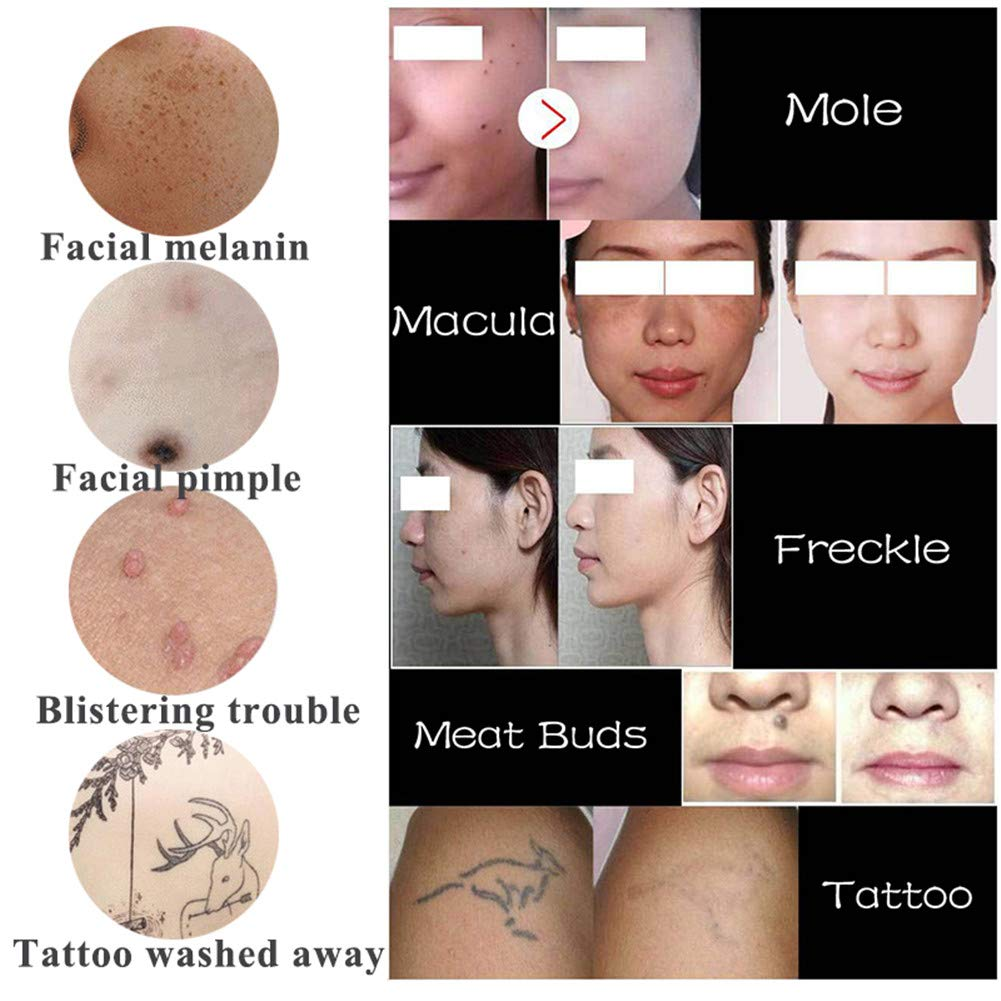 Facial Cuidado Plasma Bolígrafo Elimina Negro Manchas Tatuaje ...