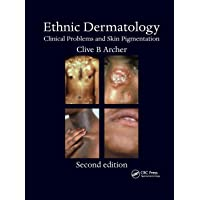 Ethnic Dermatology: Clinical Problems and Skin Pigmentation